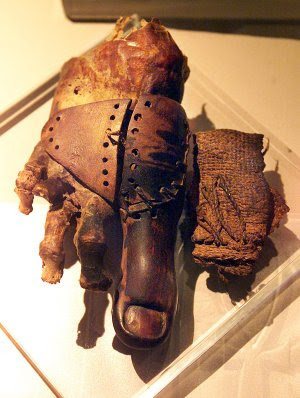 The Civil War and the Modern Prosthetics Industry